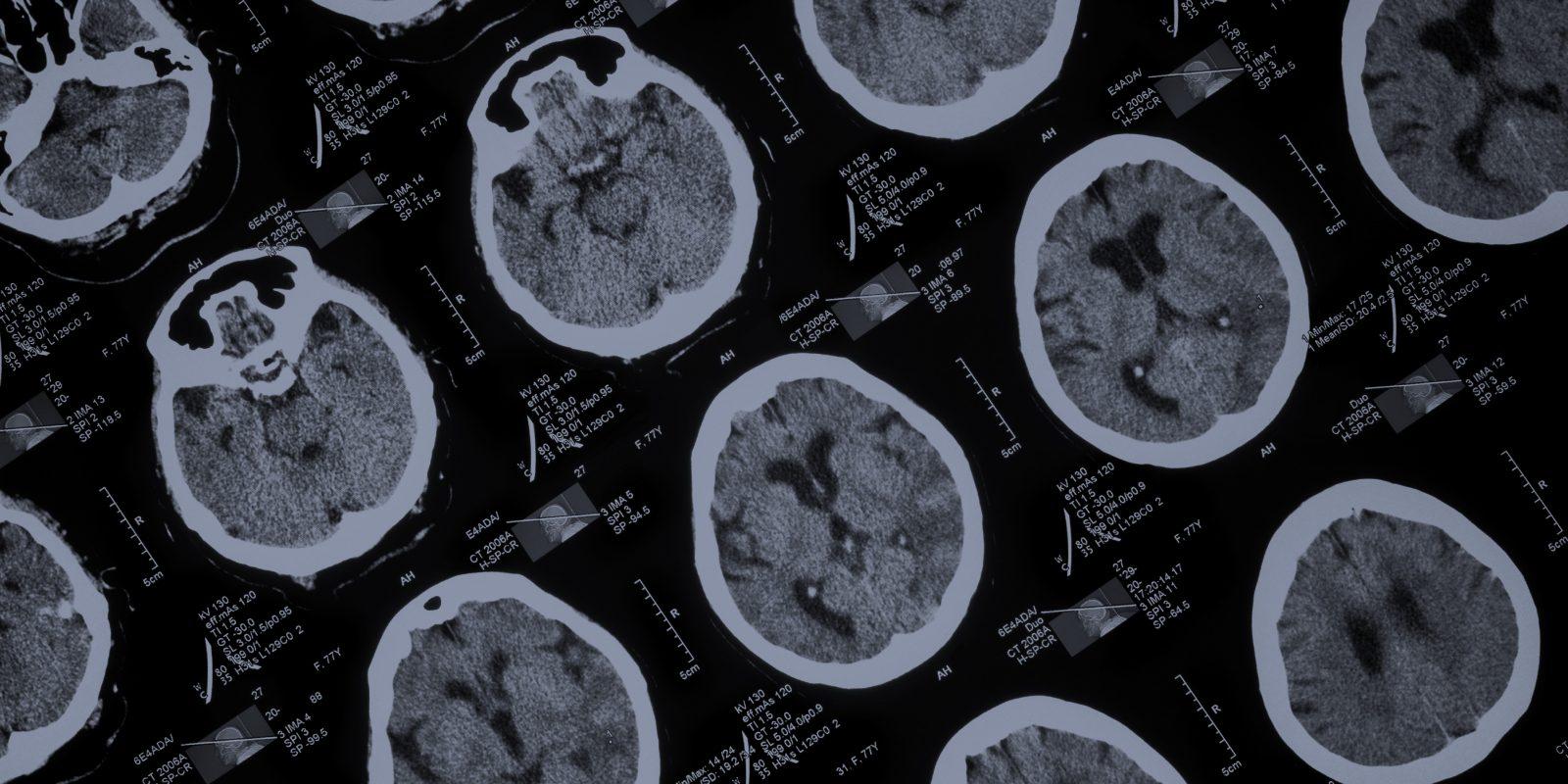 Neurologic <strong>Injury</strong>